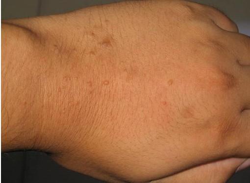 手背上扁平疣症状图片