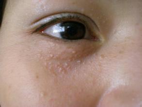 面部扁平疣症状图片